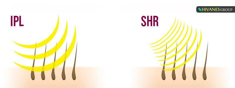 تفاوت دستگاه IPL و SHR