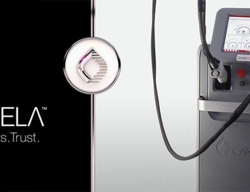 دستگاه لیزر الکساندرایت کندلا