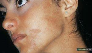 لک پوستی ملاسما هایپرپیگمنتیشن
